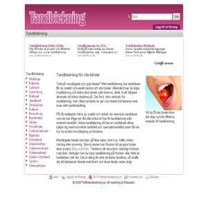 Tandblekning Guide